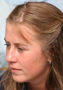 Anna - Belgium